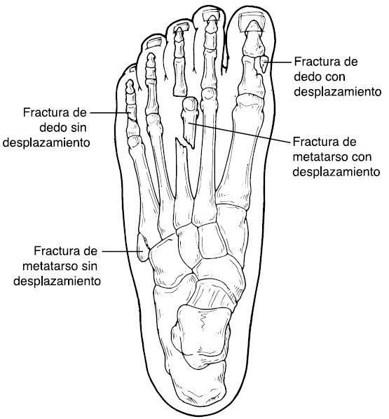 La Fractura - Fractura de los dedos del pie y el metatarso