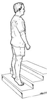 El Esguince - Esguince de tobillo