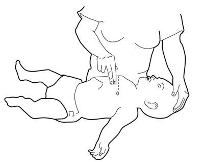 Masaje Cardíaco Niños y Lactantes