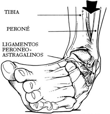 Socorrismo traumatismo esquince del pie