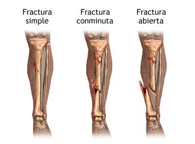 Socorrismo traumatismo tipos de fracturas