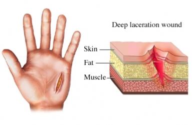 Socorrismo traumatismo tipos de heridas